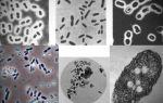 Виды бактериальных удобрений