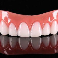 Накладные зубные виниры за копейки!